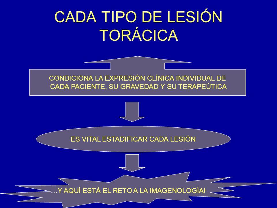 RESULTADOS OBTENIDOS POR RX SIMPLE DE TÓRAX Y DE TAC HALLAZGOS REALES TÓRAX SP POR TAC ENTIDAD T T % T % Frac.