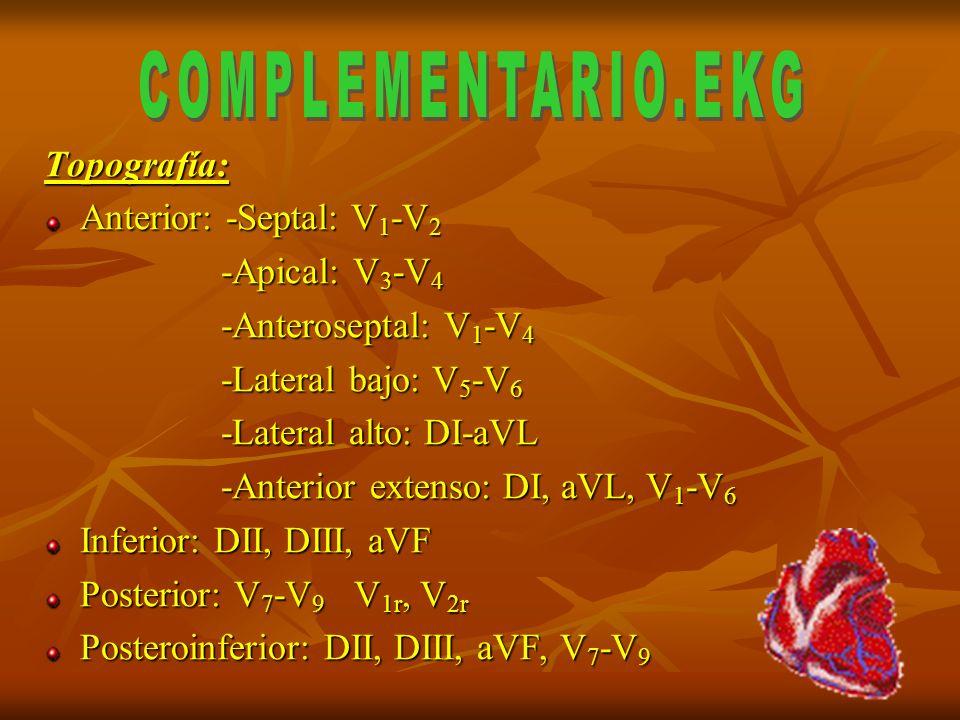 Topografía: Anterior: -Septal: V 1 -V 2 -Apical: V 3 -V 4 -Apical: V 3 -V 4 -Anteroseptal: V 1 -V 4 -Anteroseptal: V 1 -V 4 -Lateral bajo: V 5 -V 6 -L