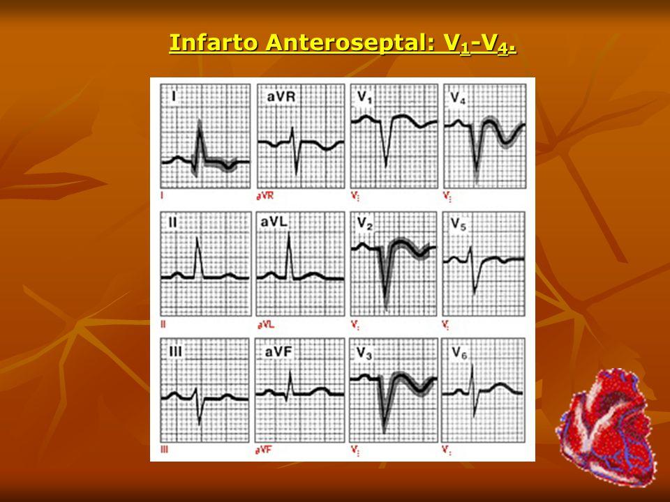 Infarto Anteroseptal: V 1 -V 4.