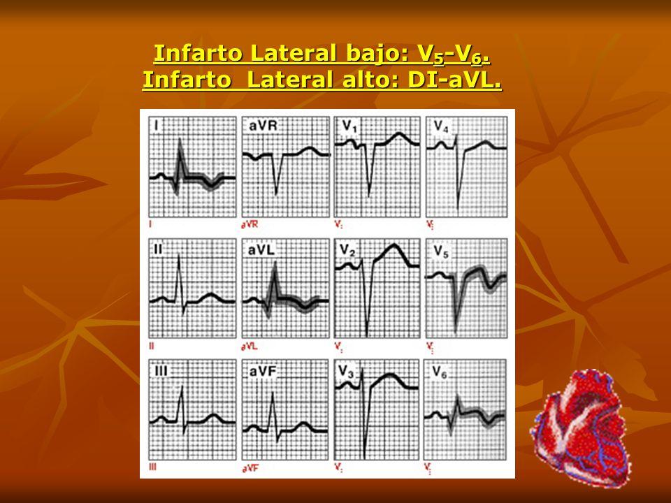 Infarto Lateral bajo: V 5 -V 6. Infarto Lateral alto: DI-aVL.