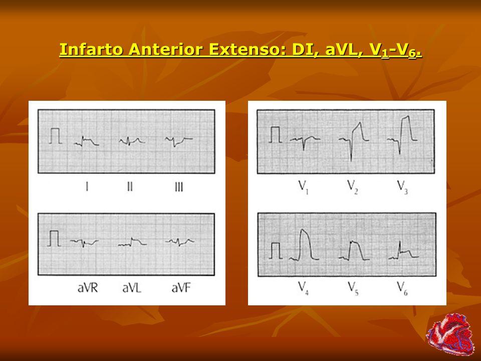 Infarto Anterior Extenso: DI, aVL, V 1 -V 6.