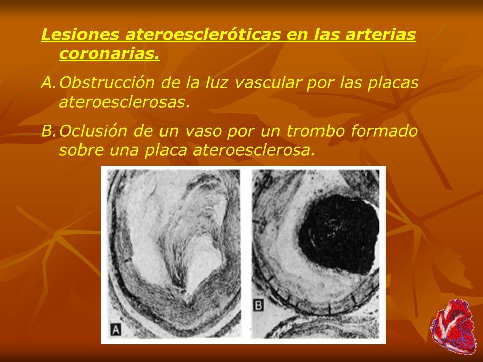 Lesiones ateroescleróticas en las arterias coronarias. A.Obstrucción de la luz vascular por las placas ateroesclerosas. B.Oclusión de un vaso por un t