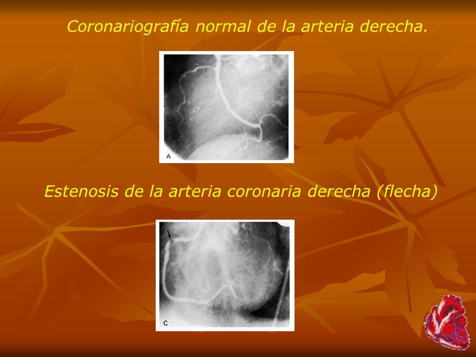 Coronariografía normal de la arteria derecha. Estenosis de la arteria coronaria derecha (flecha)