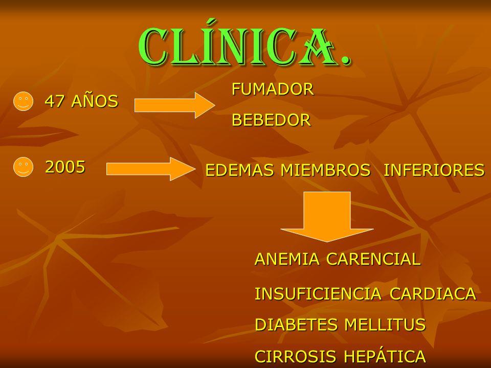 CLÍNICA. 47 AÑOS FUMADOR BEBEDOR 2005 EDEMAS MIEMBROS INFERIORES ANEMIA CARENCIAL INSUFICIENCIA CARDIACA DIABETES MELLITUS CIRROSIS HEPÁTICA