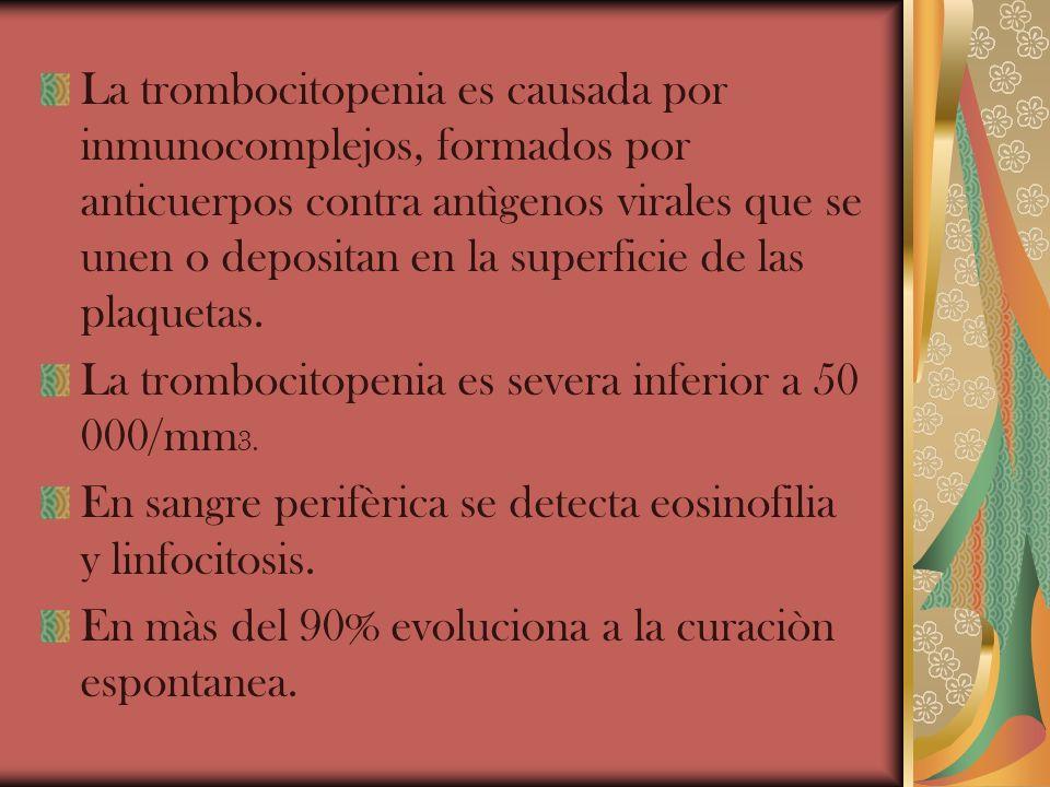 La trombocitopenia es causada por inmunocomplejos, formados por anticuerpos contra antìgenos virales que se unen o depositan en la superficie de las p