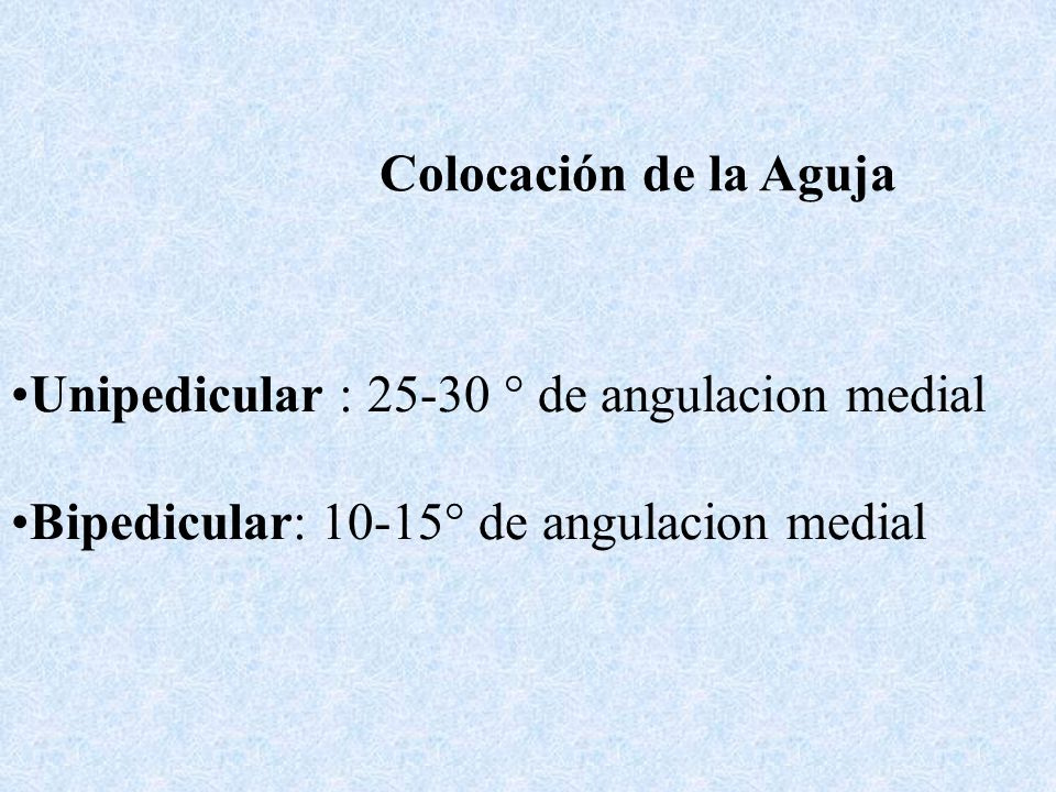 Colocación de la Aguja Unipedicular : 25-30 ° de angulacion medial Bipedicular: 10-15° de angulacion medial