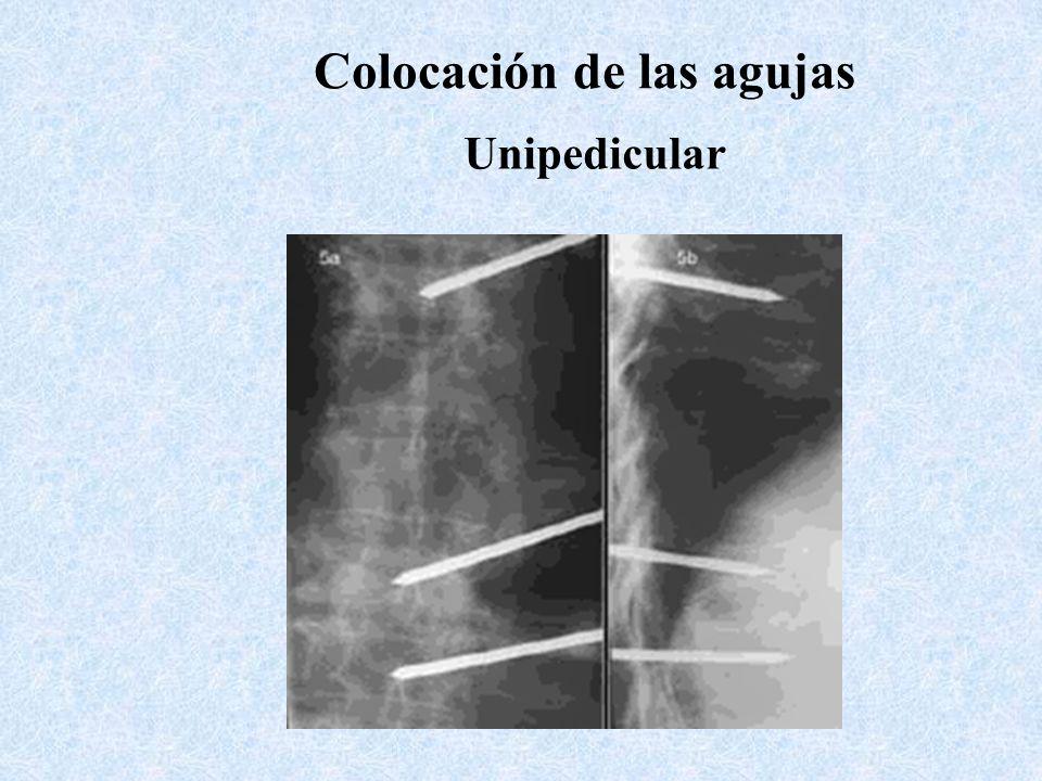 Colocación de las agujas Unipedicular