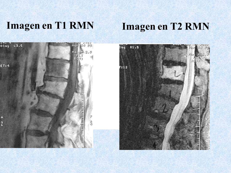 Imagen en T1 RMN Imagen en T2 RMN