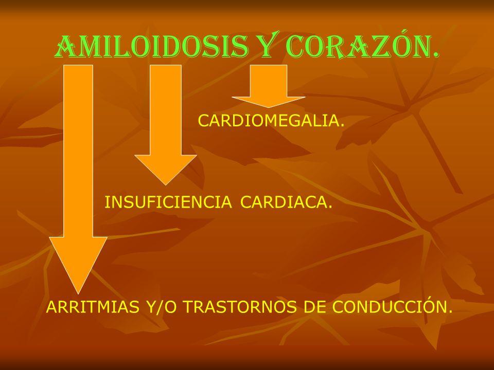 AMILOIDOSIS y corazón. CARDIOMEGALIA. INSUFICIENCIA CARDIACA. ARRITMIAS Y/O TRASTORNOS DE CONDUCCIÓN.