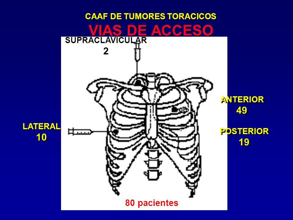 CAAF DE TUMORES TORACICOS VIAS DE ACCESO SUPRACLAVICULAR 2 ANTERIOR 49 ANTERIOR 49 POSTERIOR 19 POSTERIOR 19 LATERAL 10 LATERAL 10 80 pacientes