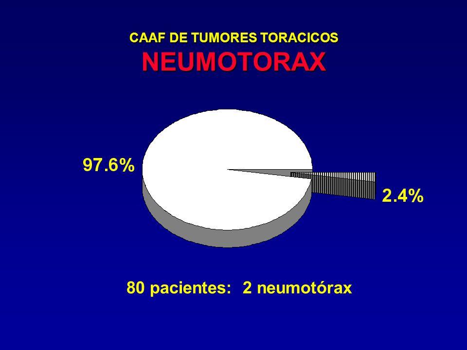 CAAF DE TUMORES TORACICOS NEUMOTORAX 80 pacientes: 2 neumotórax