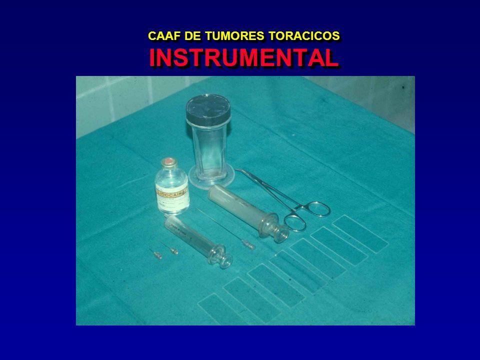 CAAF DE TUMORES TORACICOS INSTRUMENTAL
