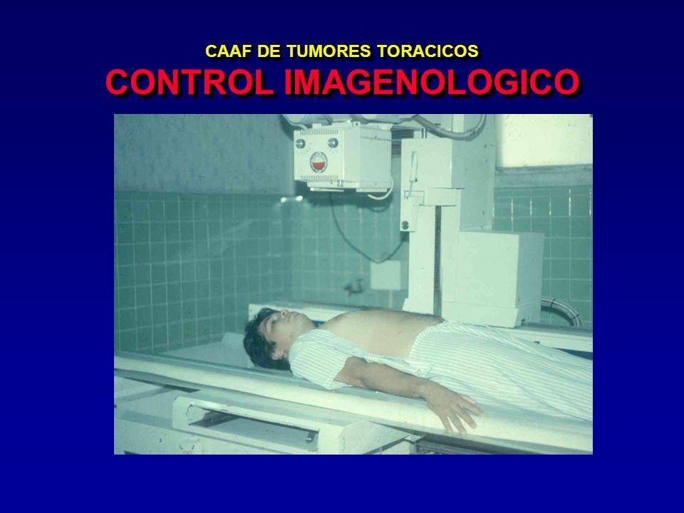 CAAF DE TUMORES TORACICOS CONTROL IMAGENOLOGICO