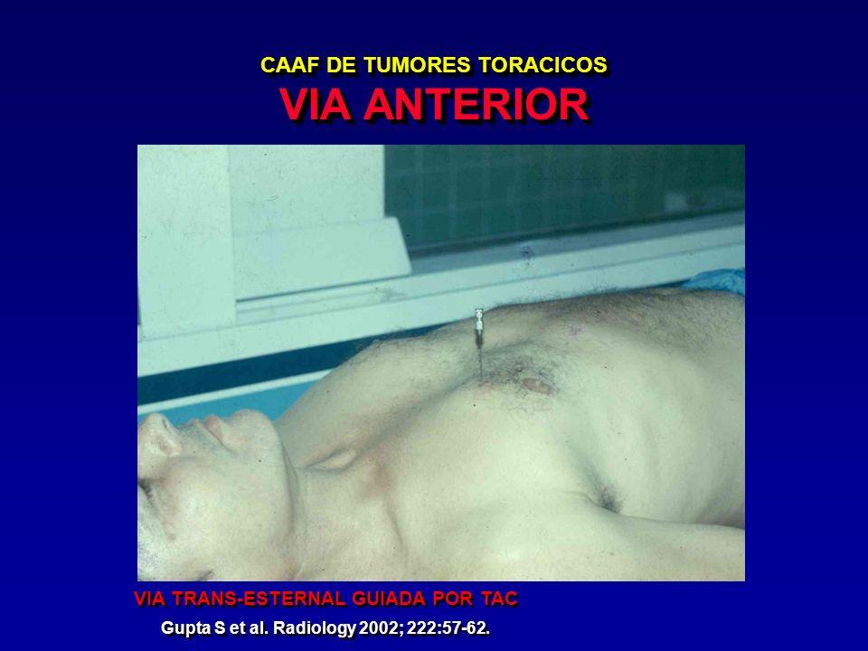 CAAF DE TUMORES TORACICOS VIA ANTERIOR VIA TRANS-ESTERNAL GUIADA POR TAC Gupta S et al. Radiology 2002; 222:57-62. VIA TRANS-ESTERNAL GUIADA POR TAC G