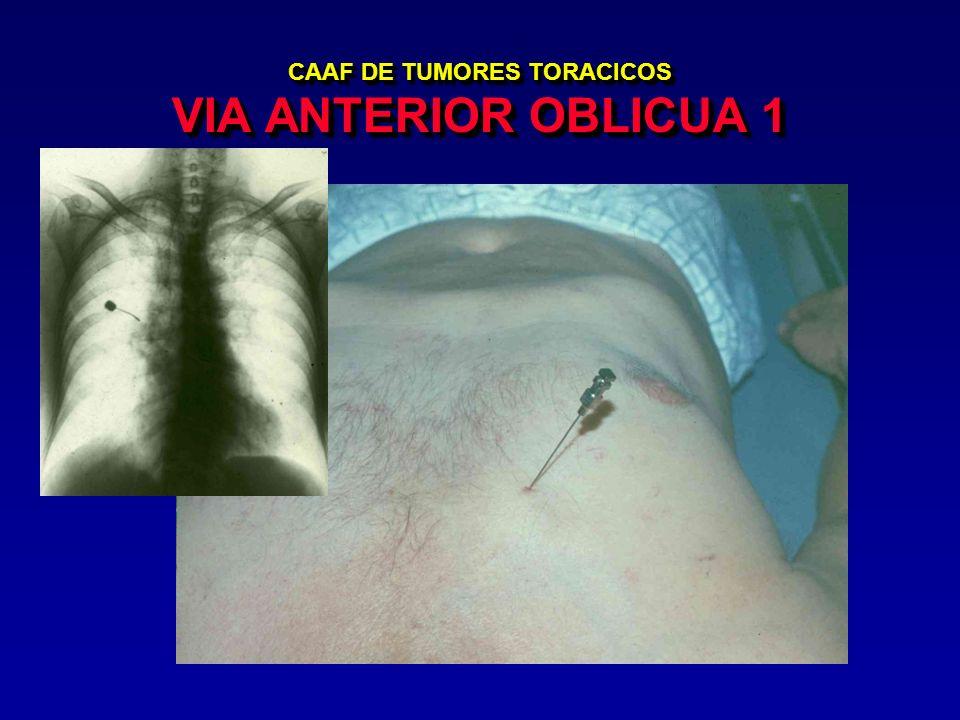 CAAF DE TUMORES TORACICOS VIA ANTERIOR OBLICUA 1