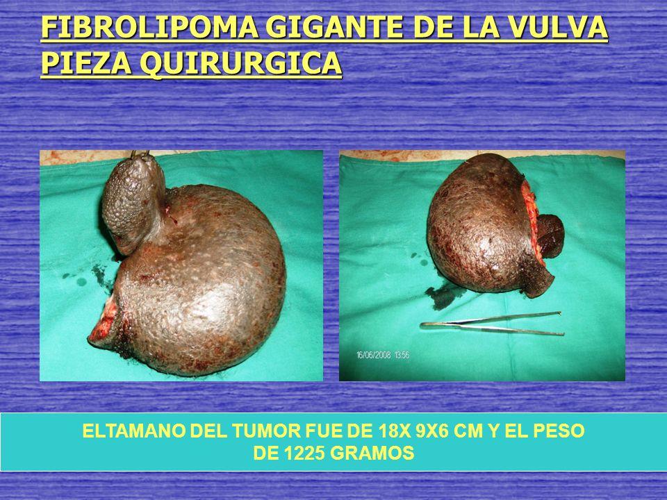 FIBROLIPOMA GIGANTE DE LA VULVA PIEZA QUIRURGICA ELTAMANO DEL TUMOR FUE DE 18X 9X6 CM Y EL PESO DE 1225 GRAMOS