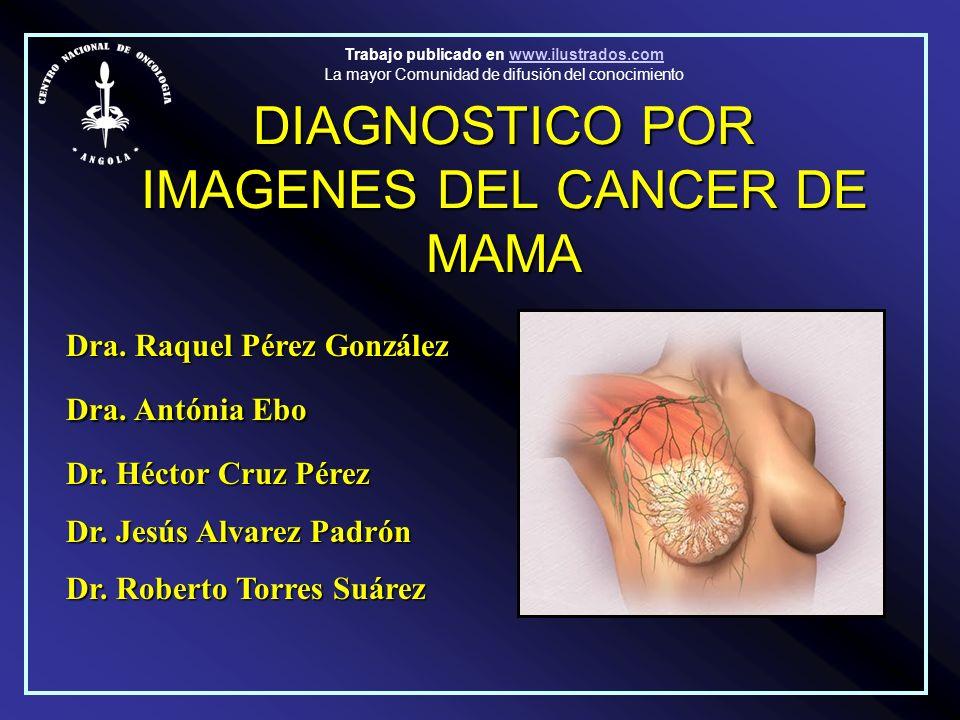DIAGNOSTICO POR IMAGENES DEL CANCER DE MAMA Dra. Raquel Pérez González Dra. Antónia Ebo Dr. Héctor Cruz Pérez Dr. Jesús Alvarez Padrón Dr. Roberto Tor