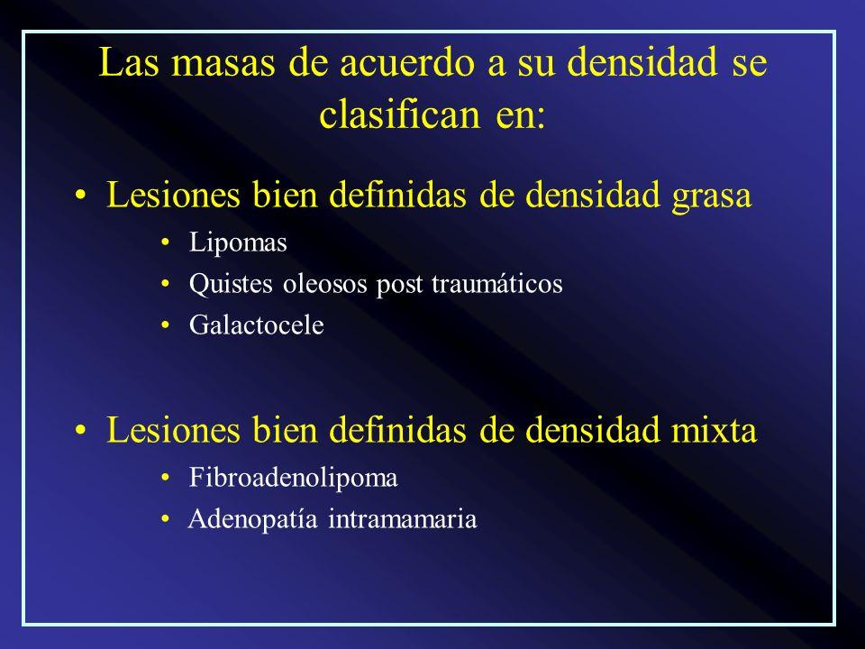 Las masas de acuerdo a su densidad se clasifican en: Lesiones bien definidas de densidad grasa Lipomas Quistes oleosos post traumáticos Galactocele Le
