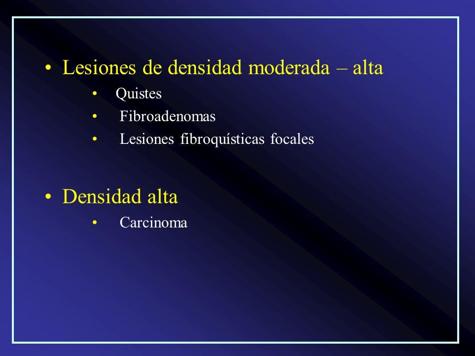 Lesiones de densidad moderada – alta Quistes Fibroadenomas Lesiones fibroquísticas focales Densidad alta Carcinoma