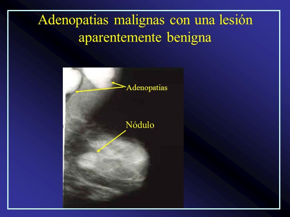 Adenopatias malignas con una lesión aparentemente benigna Nódulo Adenopatias