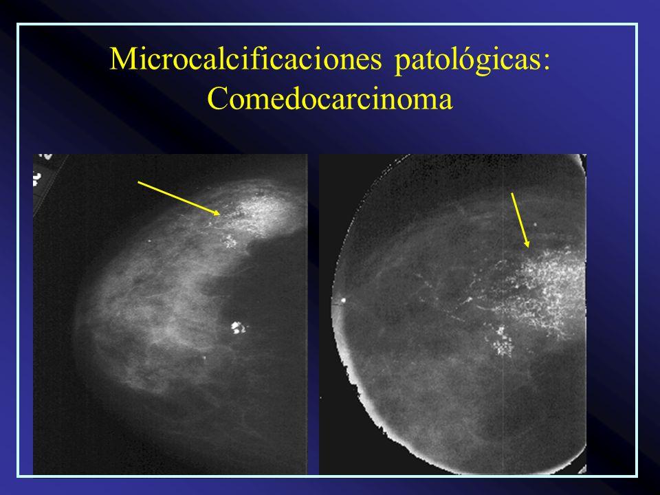 Microcalcificaciones patológicas: Comedocarcinoma