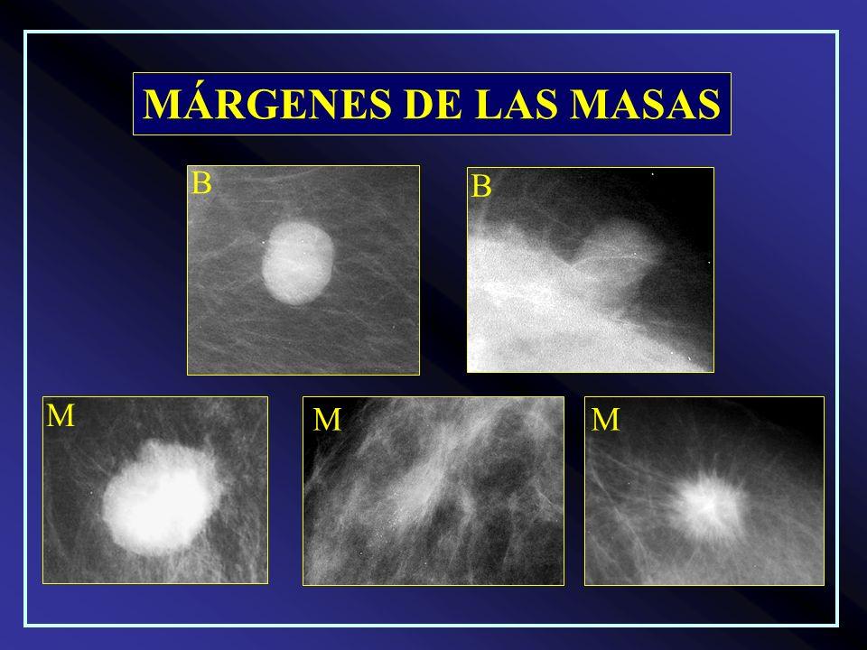 MÁRGENES DE LAS MASAS B B M MM