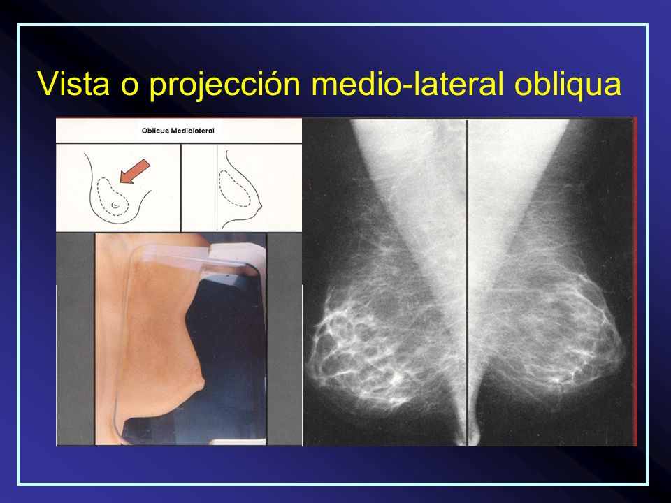 Vista o projección medio-lateral obliqua