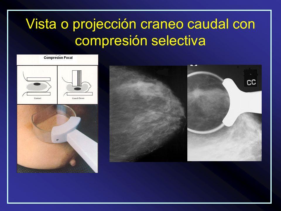 Vista o projección craneo caudal con compresión selectiva
