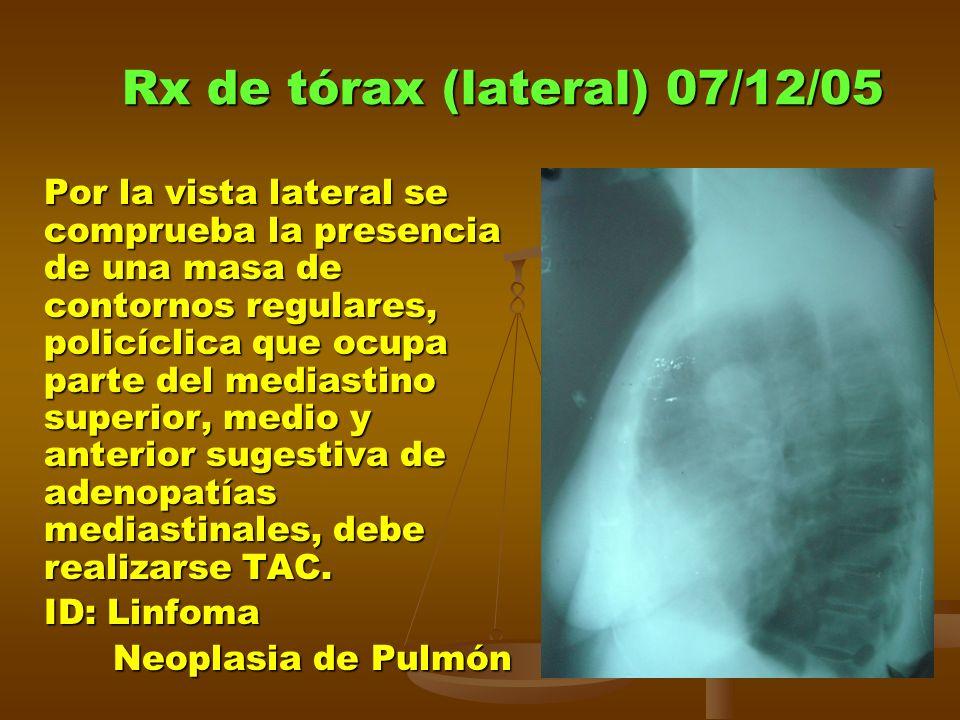 Rx de tórax (lateral) 07/12/05 Por la vista lateral se comprueba la presencia de una masa de contornos regulares, policíclica que ocupa parte del mediastino superior, medio y anterior sugestiva de adenopatías mediastinales, debe realizarse TAC.