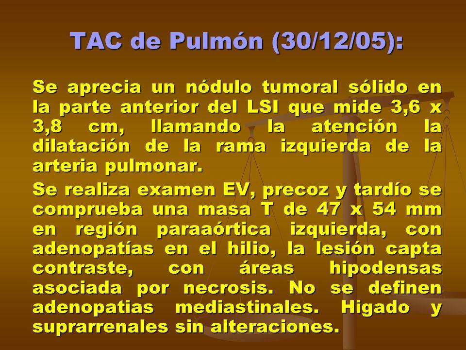 TAC de Pulmón (30/12/05): Se aprecia un nódulo tumoral sólido en la parte anterior del LSI que mide 3,6 x 3,8 cm, llamando la atención la dilatación de la rama izquierda de la arteria pulmonar.