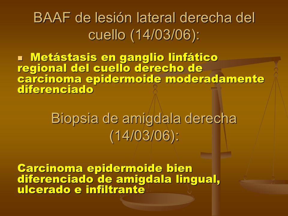 BAAF de lesión lateral derecha del cuello (14/03/06): Metástasis en ganglio linfático regional del cuello derecho de carcinoma epidermoide moderadamente diferenciado Metástasis en ganglio linfático regional del cuello derecho de carcinoma epidermoide moderadamente diferenciado Biopsia de amigdala derecha (14/03/06): Carcinoma epidermoide bien diferenciado de amigdala lingual, ulcerado e infiltrante