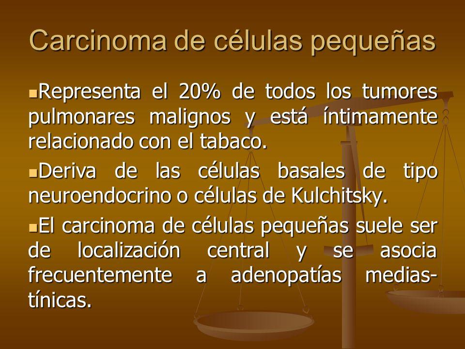 Carcinoma de células pequeñas Representa el 20% de todos los tumores pulmonares malignos y está íntimamente relacionado con el tabaco.