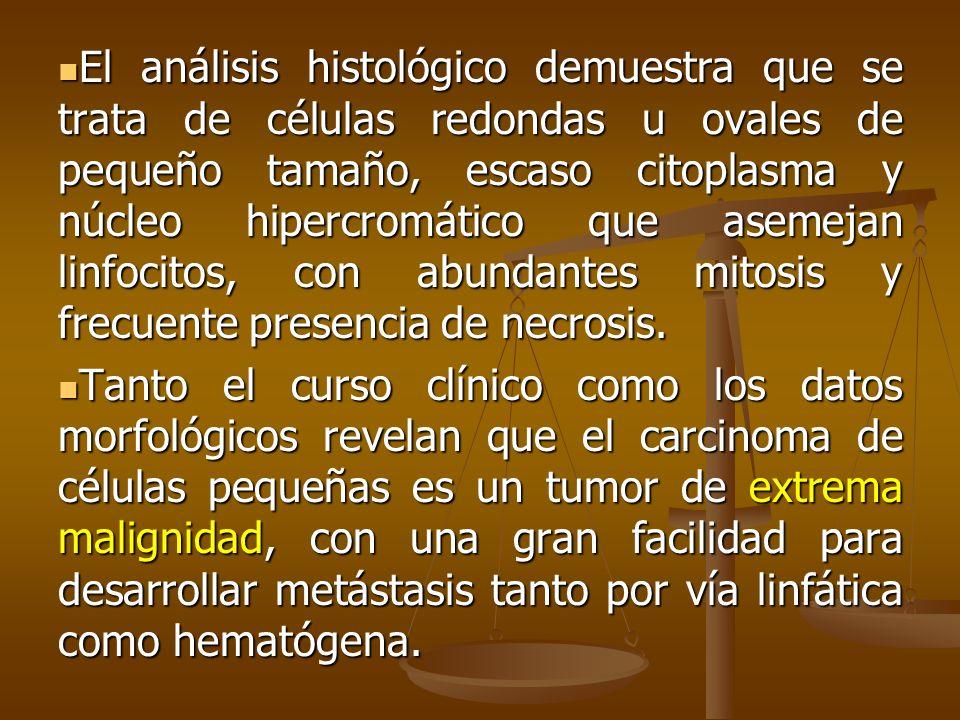 El análisis histológico demuestra que se trata de células redondas u ovales de pequeño tamaño, escaso citoplasma y núcleo hipercromático que asemejan linfocitos, con abundantes mitosis y frecuente presencia de necrosis.