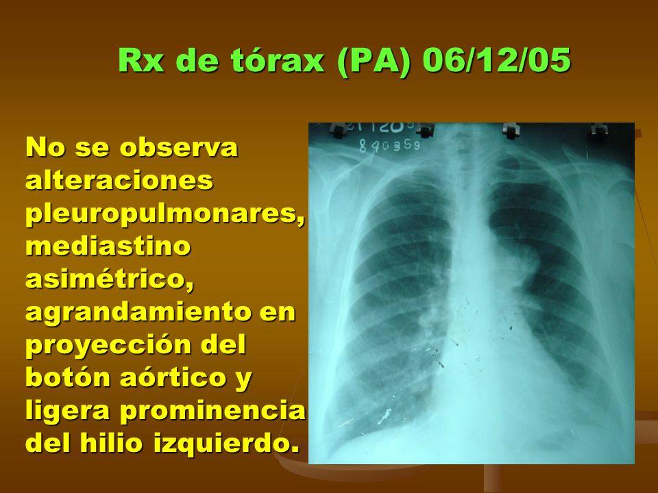 Rx de tórax (PA) 06/12/05 No se observa alteraciones pleuropulmonares, mediastino asimétrico, agrandamiento en proyección del botón aórtico y ligera prominencia del hilio izquierdo.