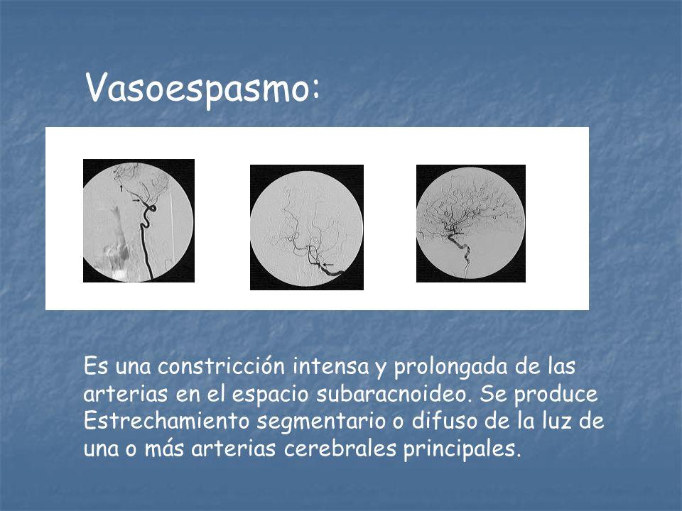 Vasoespasmo: Es una constricción intensa y prolongada de las arterias en el espacio subaracnoideo. Se produce Estrechamiento segmentario o difuso de l