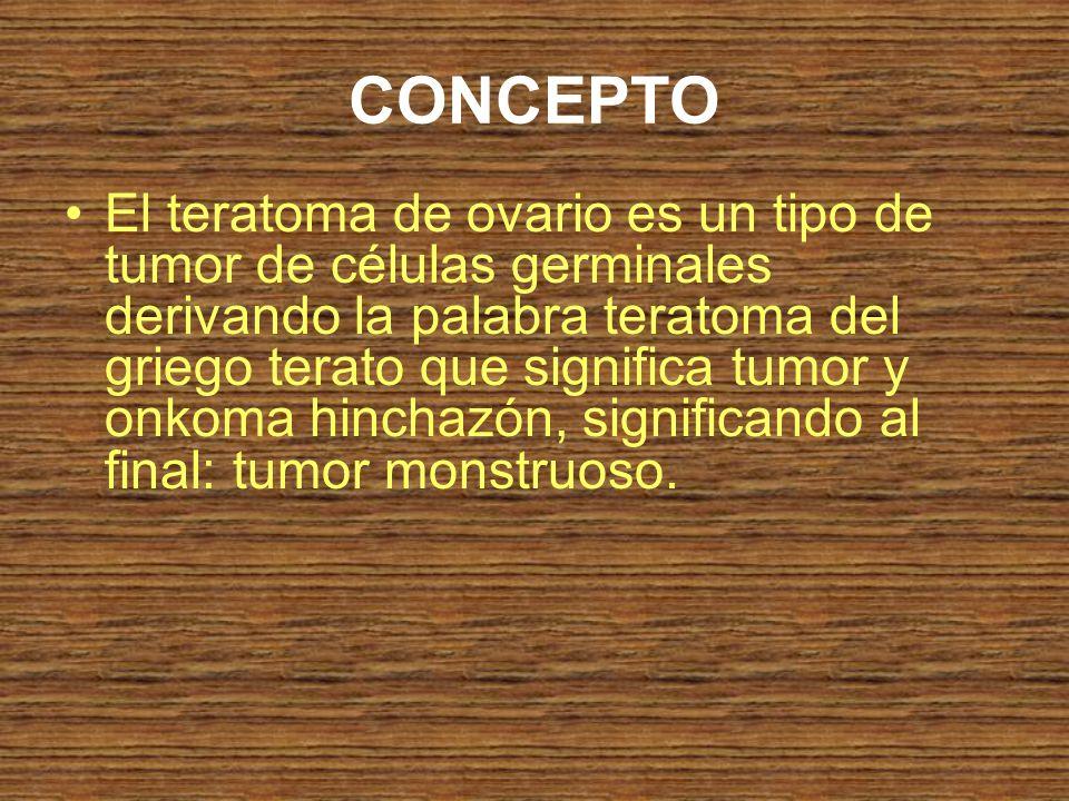CONCEPTO El teratoma de ovario es un tipo de tumor de células germinales derivando la palabra teratoma del griego terato que significa tumor y onkoma