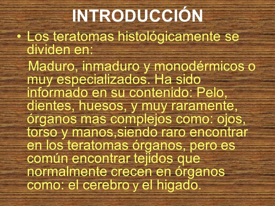 INTRODUCCIÓN Los teratomas histológicamente se dividen en: Maduro, inmaduro y monodérmicos o muy especializados. Ha sido informado en su contenido: Pe
