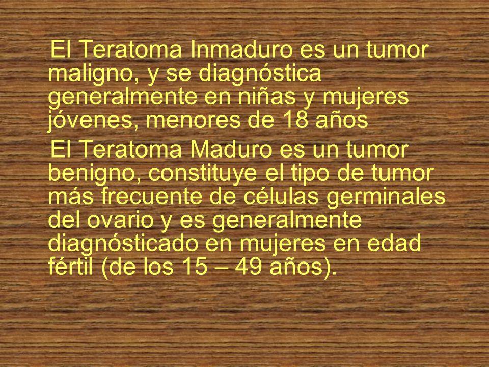 El Teratoma Inmaduro es un tumor maligno, y se diagnóstica generalmente en niñas y mujeres jóvenes, menores de 18 años El Teratoma Maduro es un tumor