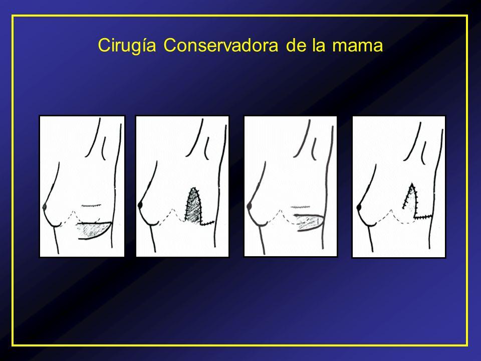 Cirugía Conservadora de la mama