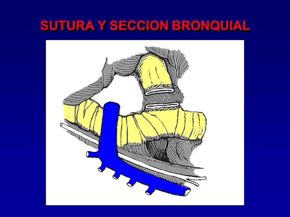 SECCION BRONQUIAL