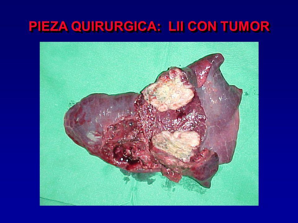 CMA PARA TRATAMIENTO PALIATIVO Derrame pleural Derrame pericárdico Metastasectomía pulmonar QT regional (art.