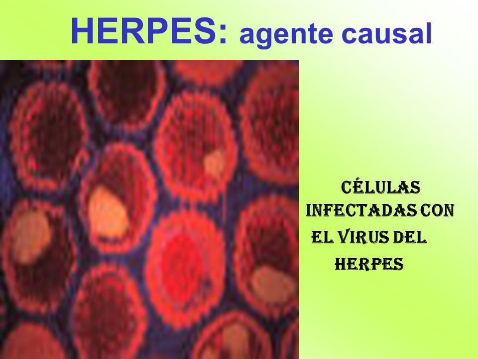 HERPES: agente causal Células infectadas con el Virus del Herpes
