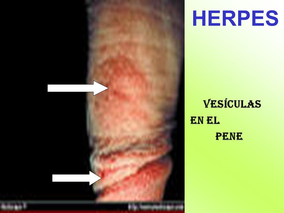 HERPES Vesículas en el pene