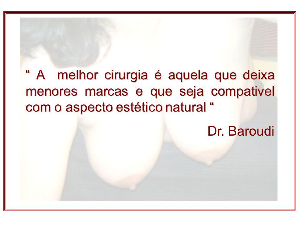A melhor cirurgia é aquela que deixa menores marcas e que seja compativel com o aspecto estético natural A melhor cirurgia é aquela que deixa menores