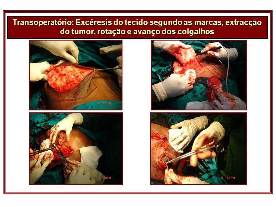 Transoperatório: Excéresis do tecido segundo as marcas, extracção do tumor, rotação e avanço dos colgalhos