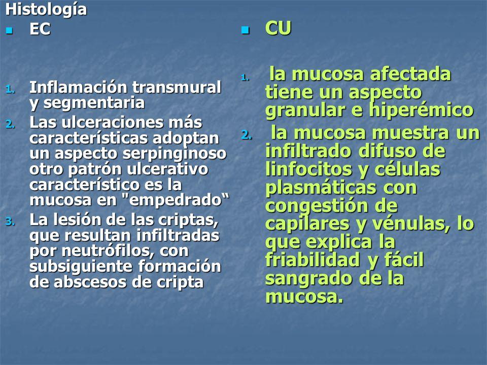 Histología EC EC 1. Inflamación transmural y segmentaria 2. Las ulceraciones más características adoptan un aspecto serpinginoso otro patrón ulcerativ
