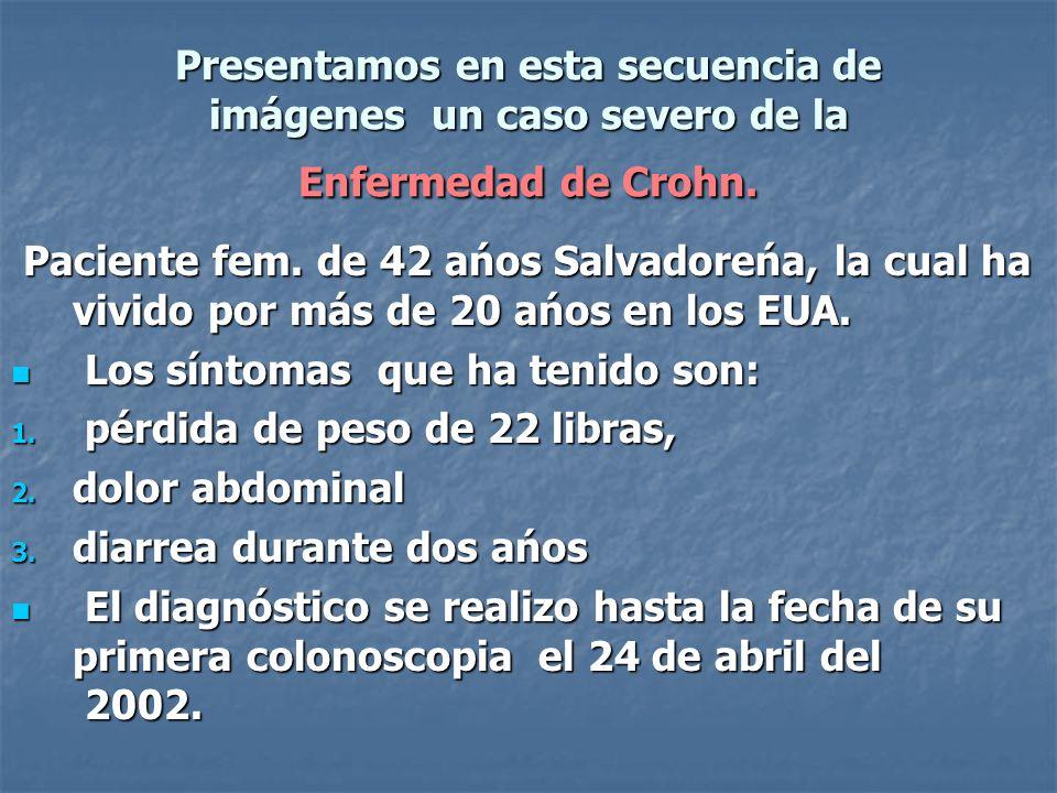 Presentamos en esta secuencia de imágenes un caso severo de la Enfermedad de Crohn. Paciente fem. de 42 ańos Salvadoreńa, la cual ha vivido por más de