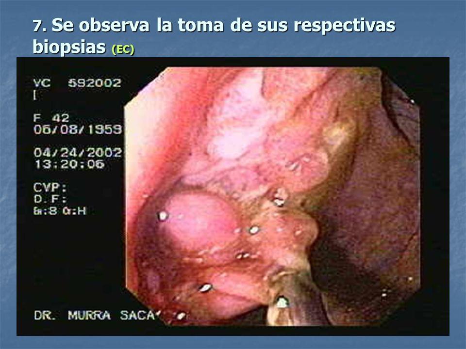 7. Se observa la toma de sus respectivas biopsias (EC)