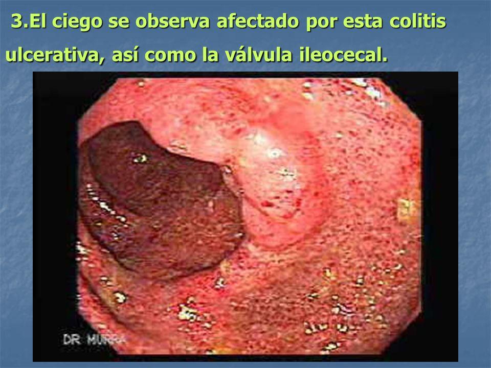 3.El ciego se observa afectado por esta colitis ulcerativa, así como la válvula ileocecal. 3.El ciego se observa afectado por esta colitis ulcerativa,