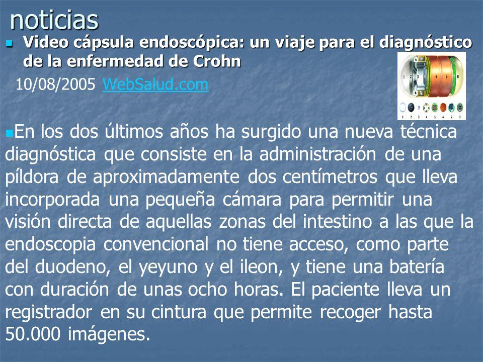 noticias Video cápsula endoscópica: un viaje para el diagnóstico de la enfermedad de Crohn Video cápsula endoscópica: un viaje para el diagnóstico de